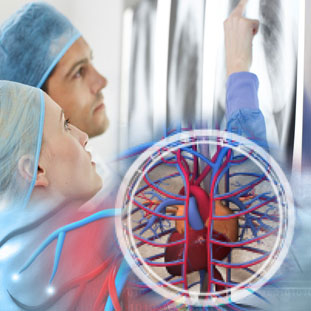 Cardio Thoracic and Vascular Surgery