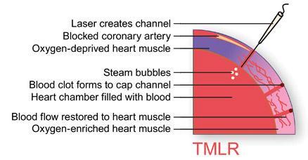 Transmyocardial Laser Revacularization