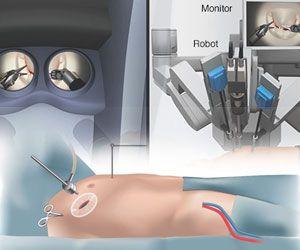 Minimal Invasive Cardiac Surgery
