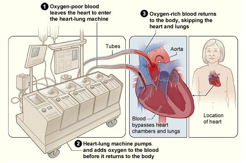 Total Artificial Hearts-VAD