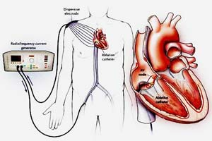 Affordable Catheter Ablation Procedure in India