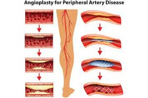 Affordable Coronary Angiography Test in India