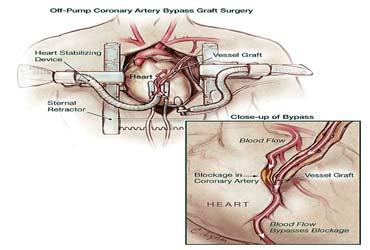 Chirurgie cardiaque abordable hors pompe en Inde
