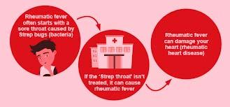 Affordable Rheumatic Heart Disease Treatment in India
