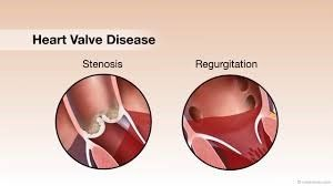 Best Hospital for Valve Replacement Surgery