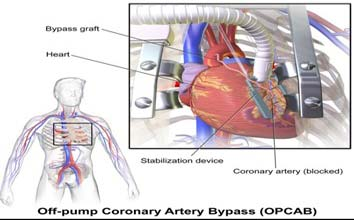 Best Hospitals for Off pump Heart Surgery in India