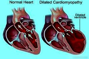 Cardiomegaly Treatment at Top Hospital in India