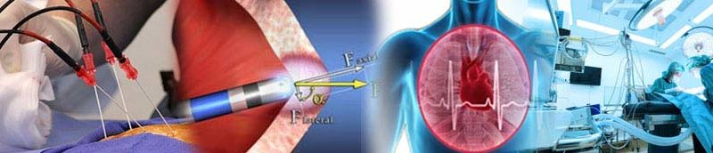 Catheter Ablation Surgical Treatment In India