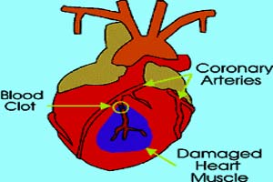 Coronary Heart Diseases in India