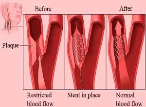 Angioplasty Surgery Cost in India