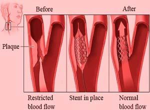 فوائد التكلفة لجراحة الأوعية الدموية في الهند