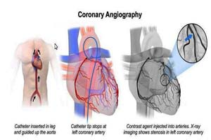 Cost of Coronary Angiography India