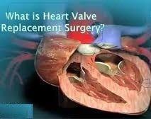 تكلفة جراحة استبدال صمام القلب في الهند