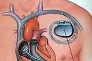 Cost of Pacemaker Implant Surgery In India