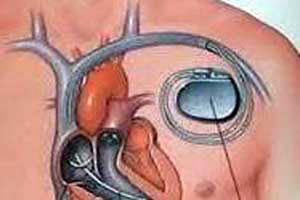 Coût de la chirurgie d'implant pacemaker en Inde