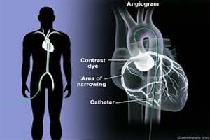 Low cost Angiography Test in India