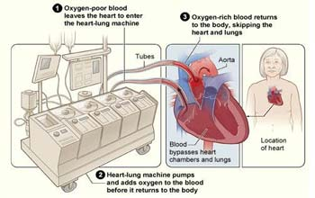 Low Cost Artifical Heart Transplant in India