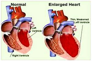 mild cardiac enlargement