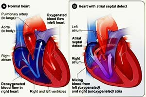 Low Cost Congenital Atrial Septal Defects (asd) Surgery in India