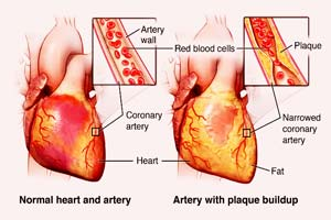 Low Cost Coronary Heart Disease Treatment in India