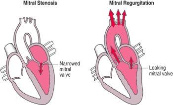 Low Cost Heart Valve Repair In India