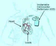 Low Cost ICD Implantation India