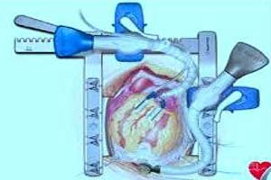 Low Cost Off Pump Heart Surgery in India