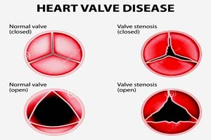 Low Cost Rheumatic Heart Disease Treatment in India