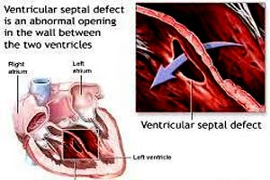 Low Cost Ventricular Septal Defect Surgery in India