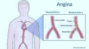 Price Of Angioplasty Surgery In India