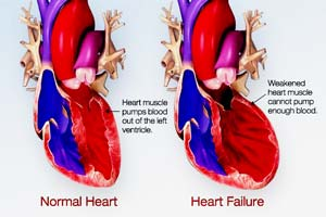 Rheumatic Heart Disease Treatments in India