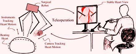 Robotic Cardiac Surgery India