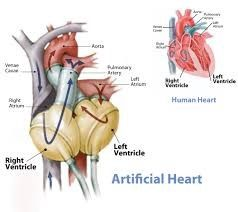 Top Cardiac Surgeons For Left Ventricular Assist Device (LVAD)