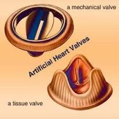 Top Hospitals for Valve Replacement Surgery In India