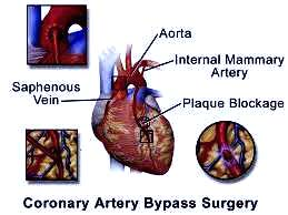 Top Surgeon for Heart Bypass Surgery