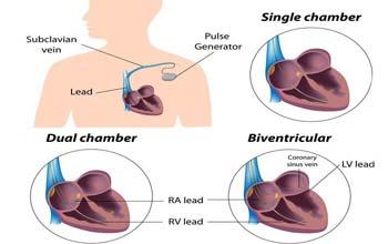 Principaux chirurgiens pour la chirurgie de pacemaker en Inde