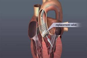 Top Surgeons Performing TAVI/TAVR Surgery at best hospitals in India