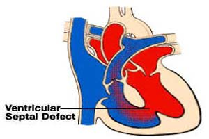Top Ventricular Septal Defect Surgeons in India