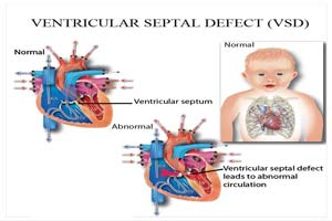 Ventricular Septal Defect Surgery at Top Hospitals in India