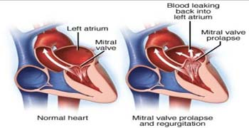 Best Hospitals Heart Valve Repair Surgery in India