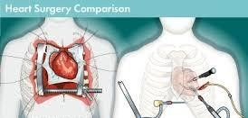 Top Hospitals Minimally Invasive Heart Surgery in India