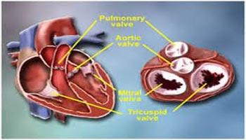Top Surgeons Heart Valve Repair Surgery in India
